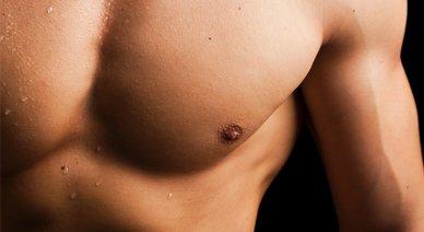 gynecomastia-surgery-ohio