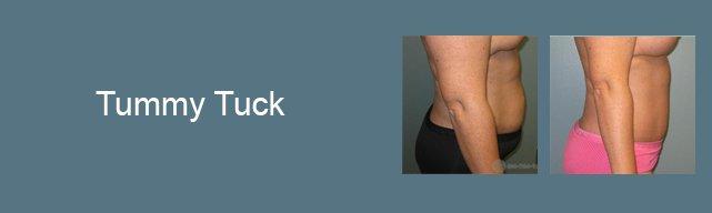 tummy-tuck-gallery-button