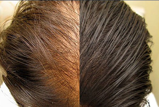 scalp-micropigmentation-columbus-oh